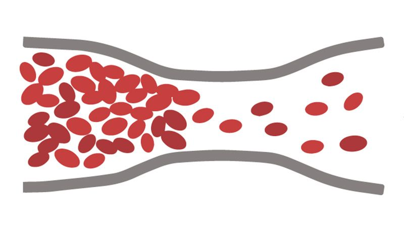Graphic of blood flowing through vein.