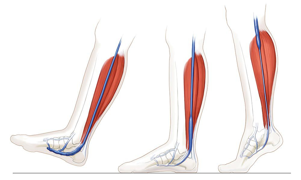 Illustration of the plantar arch is flattened with every step, causing the venous plexus to empty.
