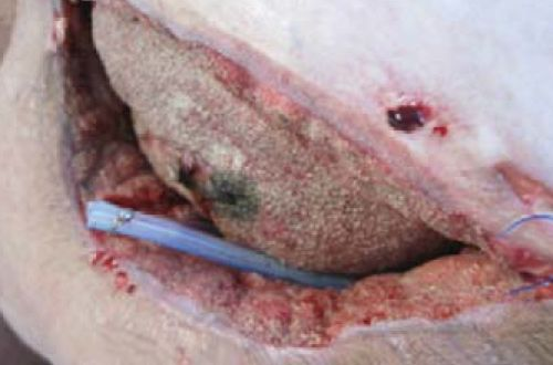 panniculus wound post-surgical view with surgical drain