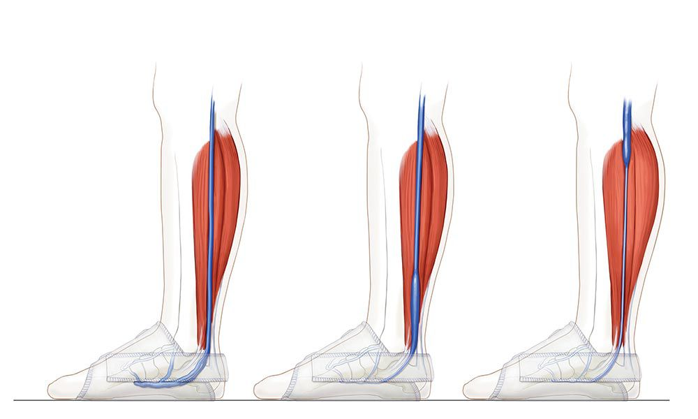 Illustration mimicking the hemodynamic effect of ambulation by flattening the plantar plexus and completely evacuating blood from the bottom of the foot.