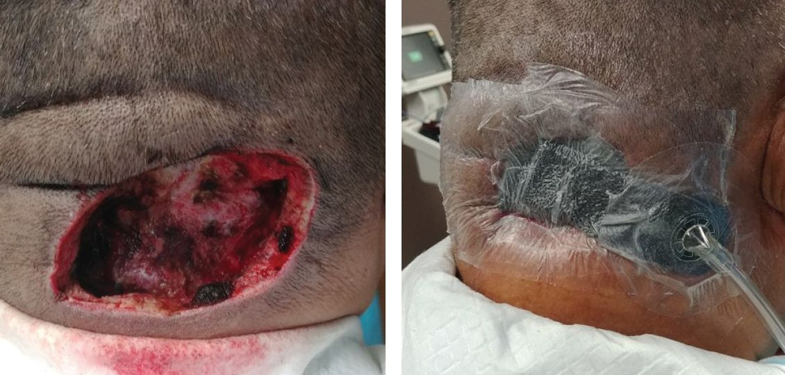 scalp wound first postoperative dressing change after 72 hours of NPWT with Simultaneous Irrigation™