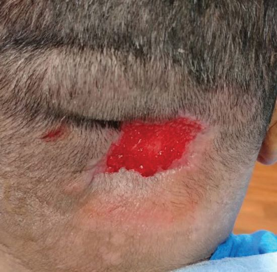 scalp wound at time of discharge