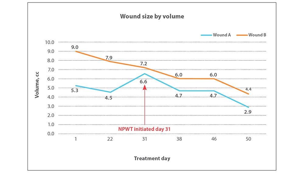 Stage IV pressure injuries to the sacrum wound size chart