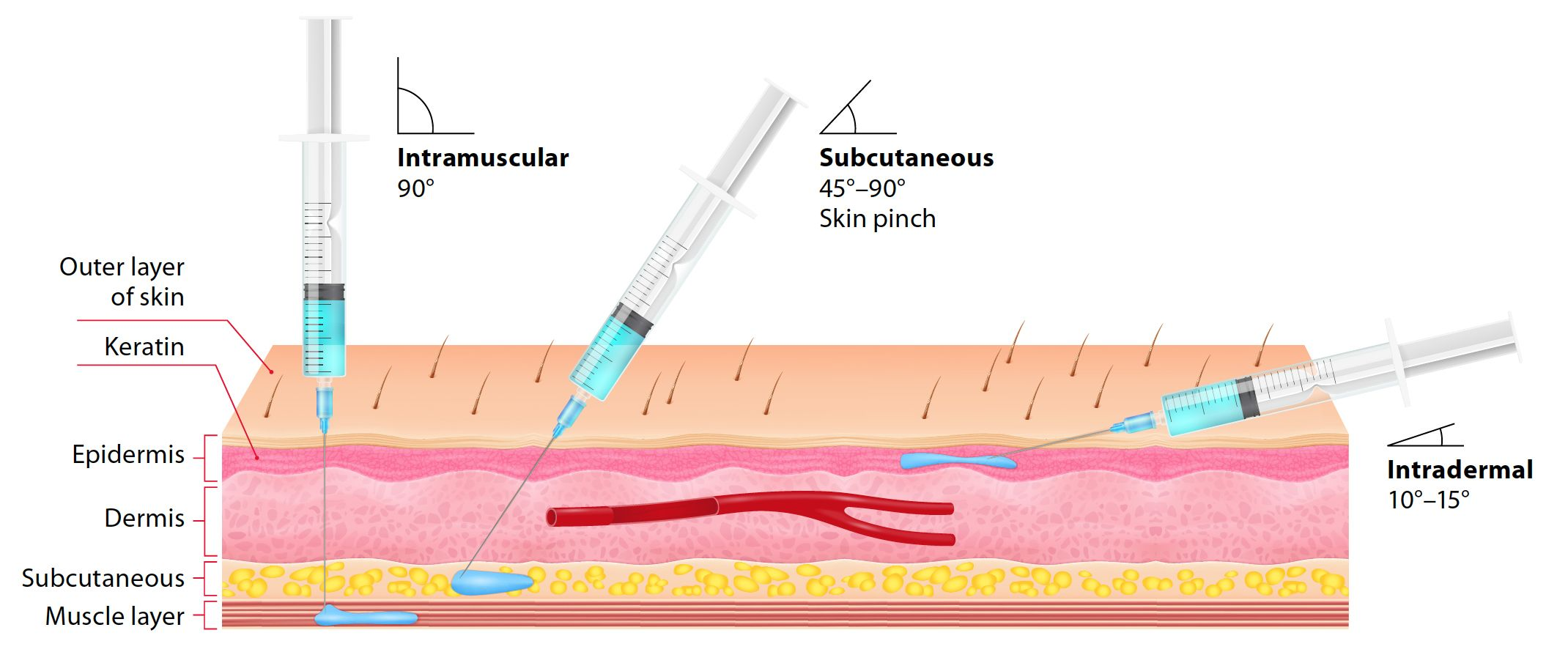 Types of needles and injections.